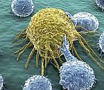 Συμμαχία ενάντια στον καρκίνο (efsyn.gr)